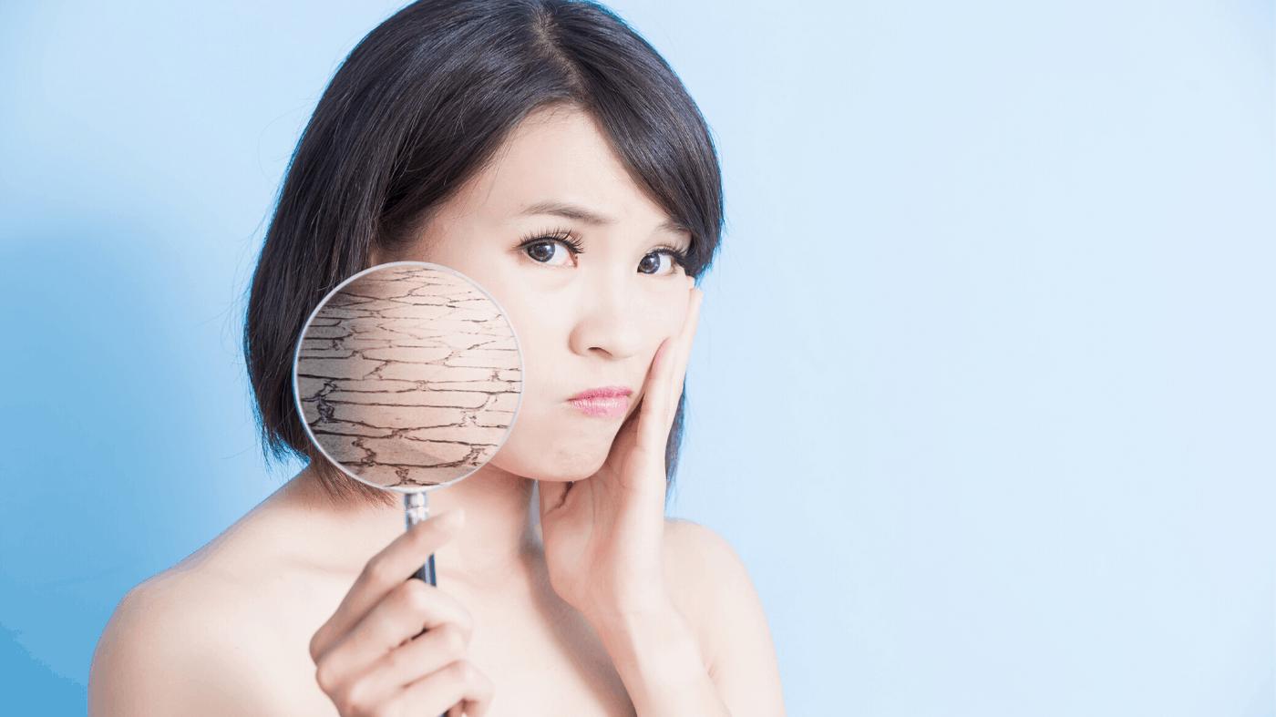 Trockene Haut im Gesicht – Symptome, Ursachen – Wie pflegst Du Sie richtige!