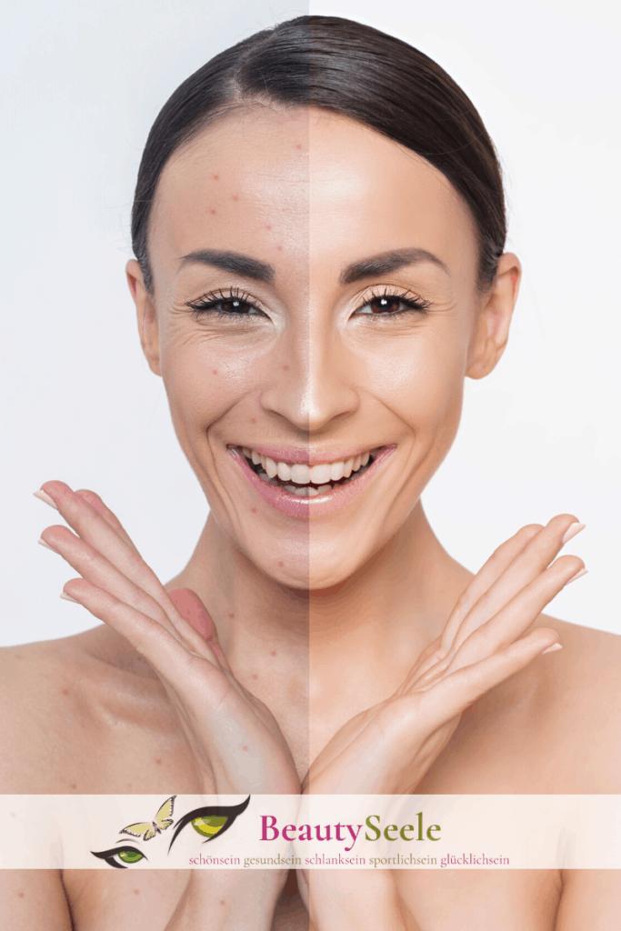 Mischhaut Pflege auf zwei verschiedene Hauttypen