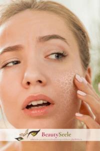 Enzym Peeling und entzündetet Haut