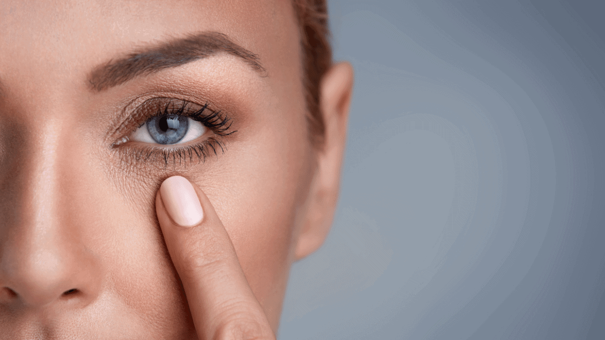 Tiefe Falten unter den Augen entfernen
