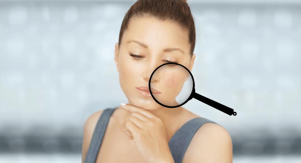 Gesicht immer rot – Wann Rötungen ein Problem sind!
